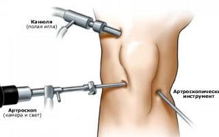 Операция на мениске колена: что предлагает современная хирургия?