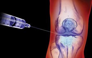 Уколы гиалуроновой кислоты в сустав: обзор лучших современных препаратов