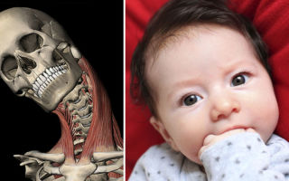 Лечение, причины и признаки кривошеи у новорожденных и взрослых