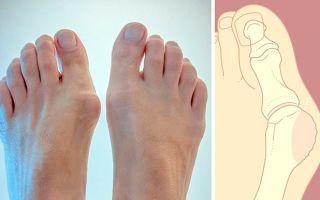 Когда болит косточка на ноге: что делать и как избавиться от вальгусной деформации стопы?