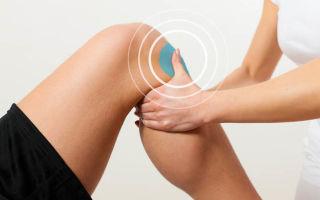 Лечение растяжения связок коленного сустава, диагностика и симптомы