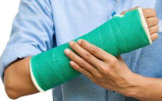 Как распознать перелом лучевой кости руки?