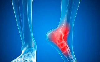 Связки голеностопного сустава: фото, виды травм и лечение