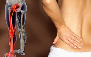 Чем лечить воспаление седалищного нерва: традиционные и народные средства