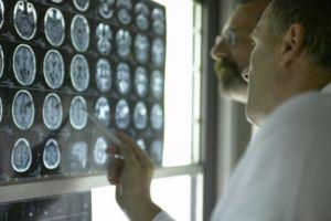 Расшифровка результатов диагностики МРТ