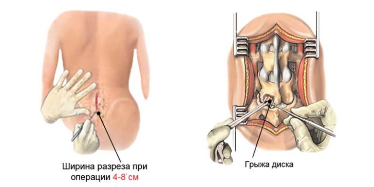 Операция на позвоночнике
