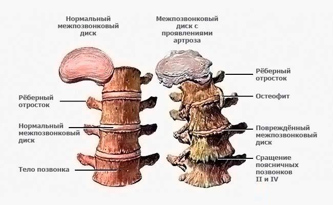Остеофиты