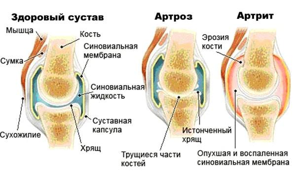 Артрит и артроз разница