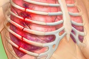 Ушиб внутренних органов