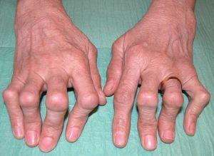 Ревматоидный полиартрит рук