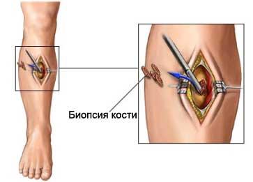 Биопсия костей