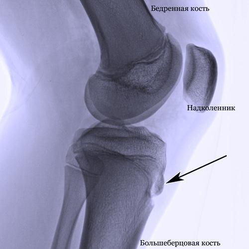Рентген снимок колена