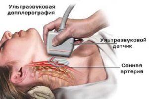 Допплерография