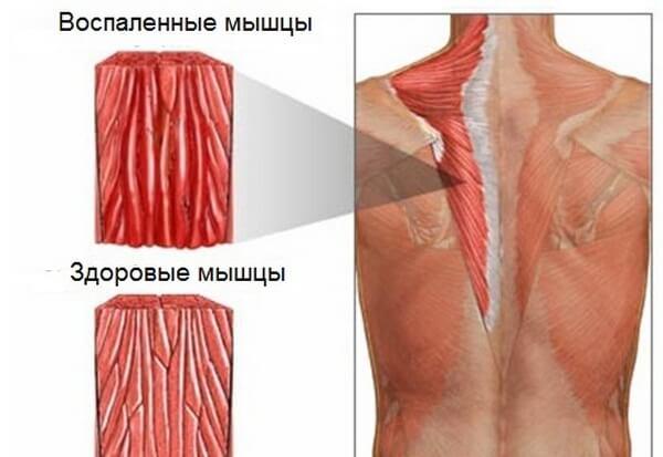 Миозит мышечный