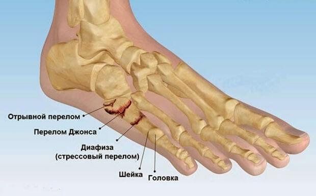 Перелом пальцев ног