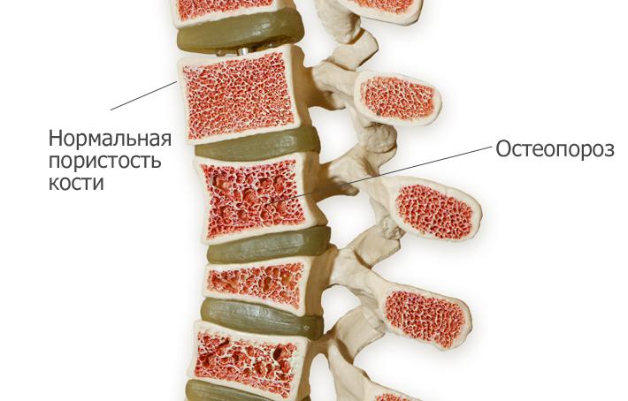 Отеопороз болезнь костей