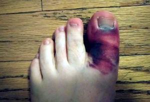 Отек при переломе пальца ноги