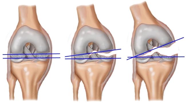 Повреждение мениска сустава
