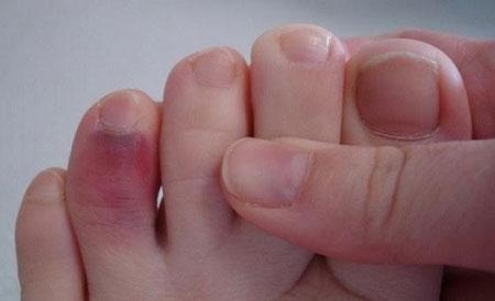 Перелом безымянного пальца ноги