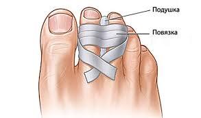 Фиксация пальцев ног
