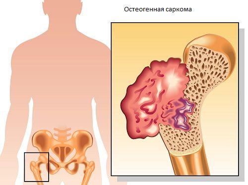 Остеогенная саркома бедренной кости