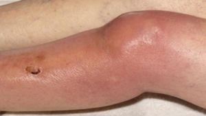 Рецидивирующий артрит
