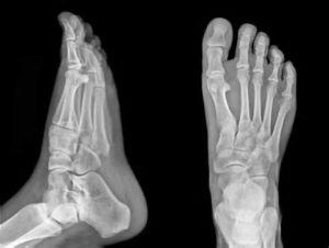 Рентген в двух проекциях