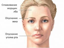 Асимметрия лица при защемлении