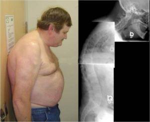 Назначение МРТ при болезни Бехтерева