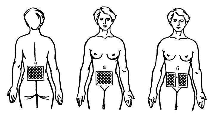 Применение амплипульса в гинекологии