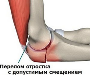Переломы костей локтя