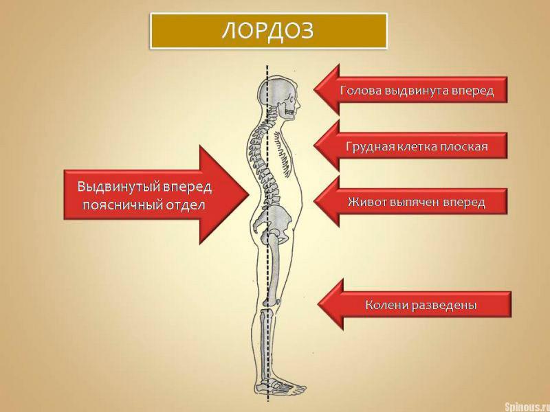 Симптомы и проявления лордоза