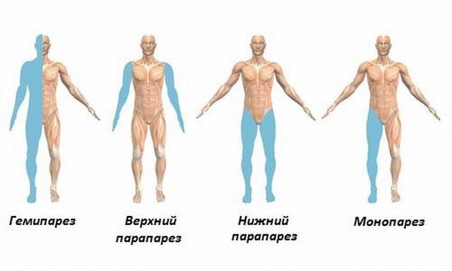 Виды парезов рук и ног