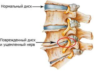 Защемление нерва поврежденным диском