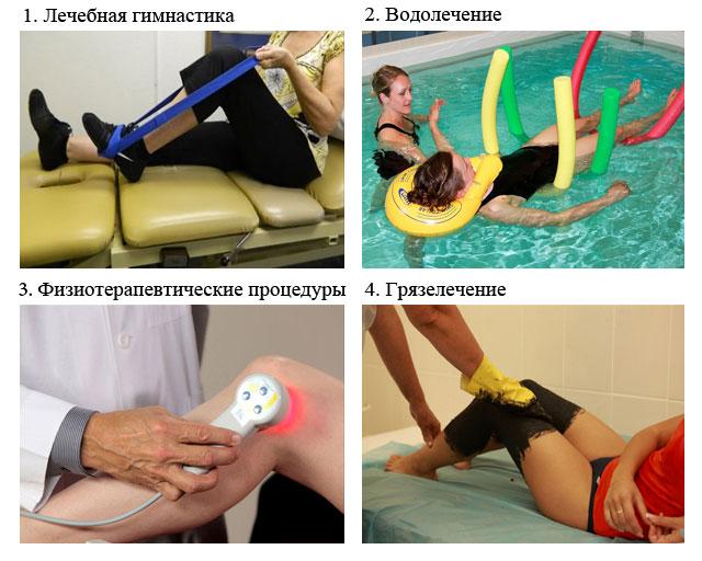 Физиотерапия после операции