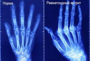 Рентген атрита