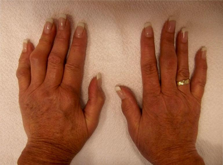 Хронический ревматизм суставов рук