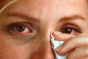 Воспаления глаза