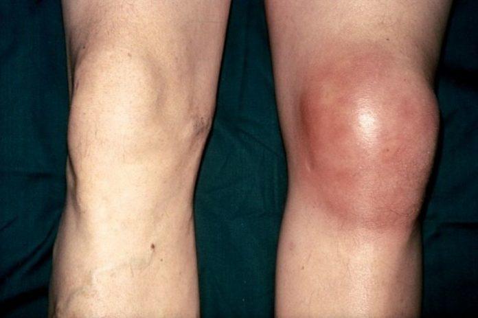 Лечение синовита коленного сустава