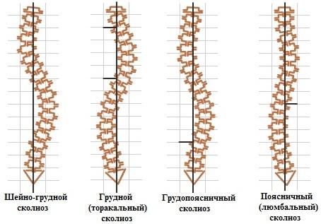 Виды и формы сколиоза