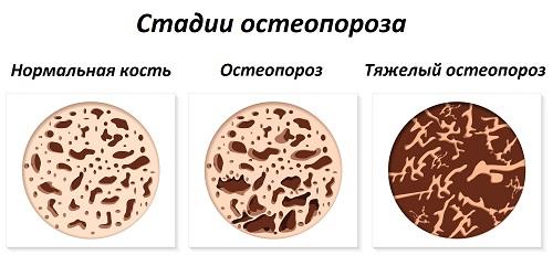 Степени тяжести остеопороза