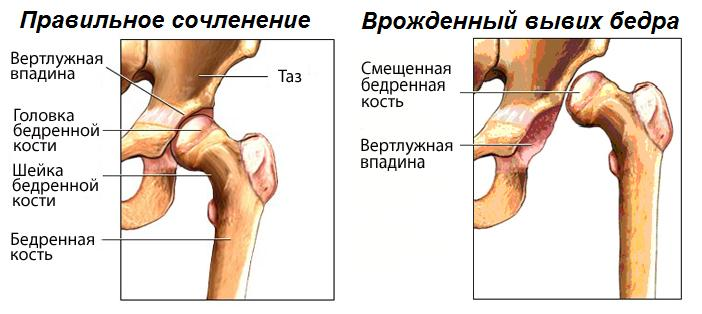 Вывих тазобедренного сустава при дисплазии