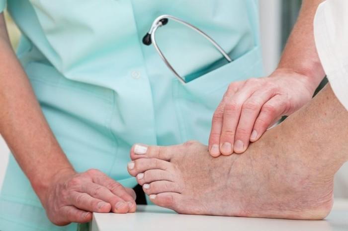 Шишка или нарост на ноге