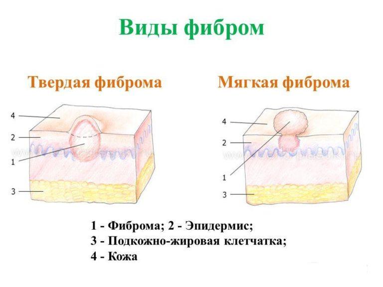 Виды фибром