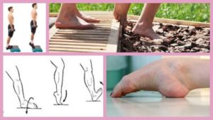 Упражнения при вальгусном плоскостопии