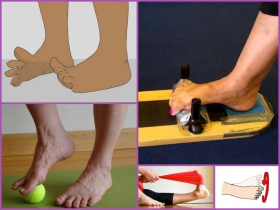 Упражнения для лечения шишки