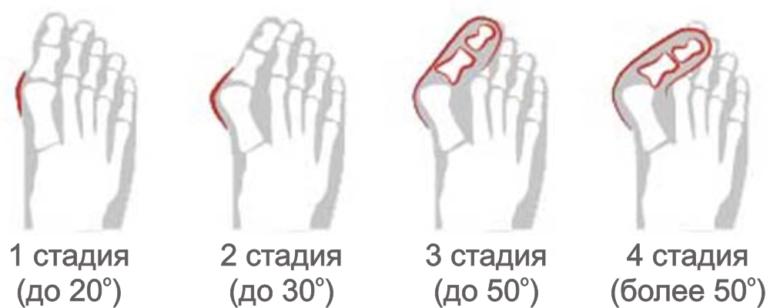 Признаки вальгусной деформации