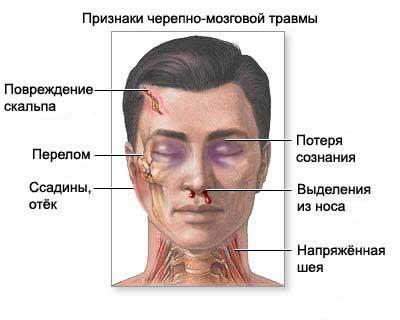 Признаки перелома черепа