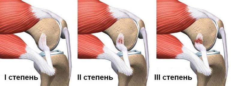 Степени разрыва коленных связок