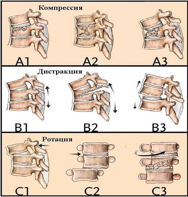 Классификация переломов позвоночника